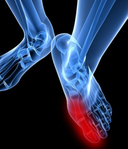 natural cures for gouty arthritis causes of very low uric acid what diet for uric acid high