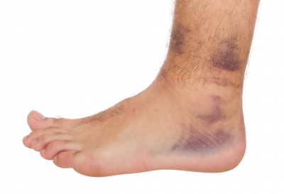 An ankle sprain showing signs of bruising